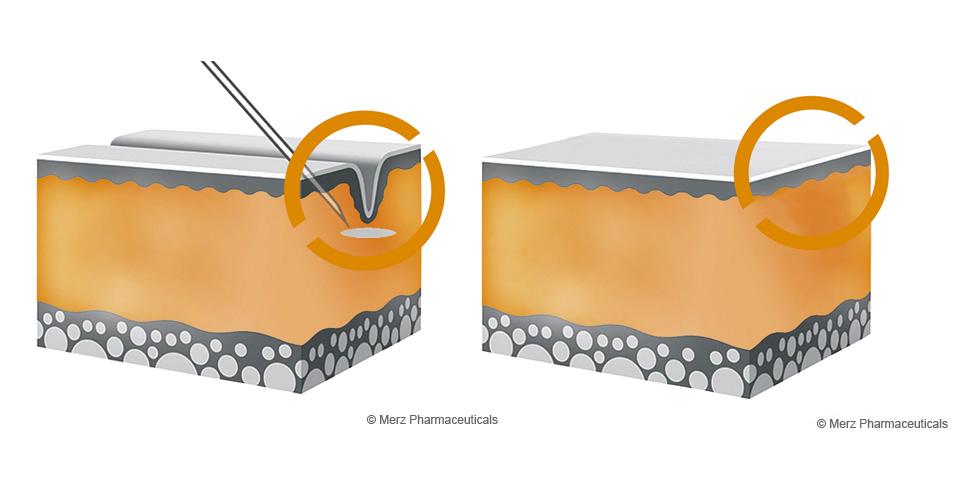 Hautschema mit Falte vor – und nach der Behandlung  © Merz Pharmaceuticals