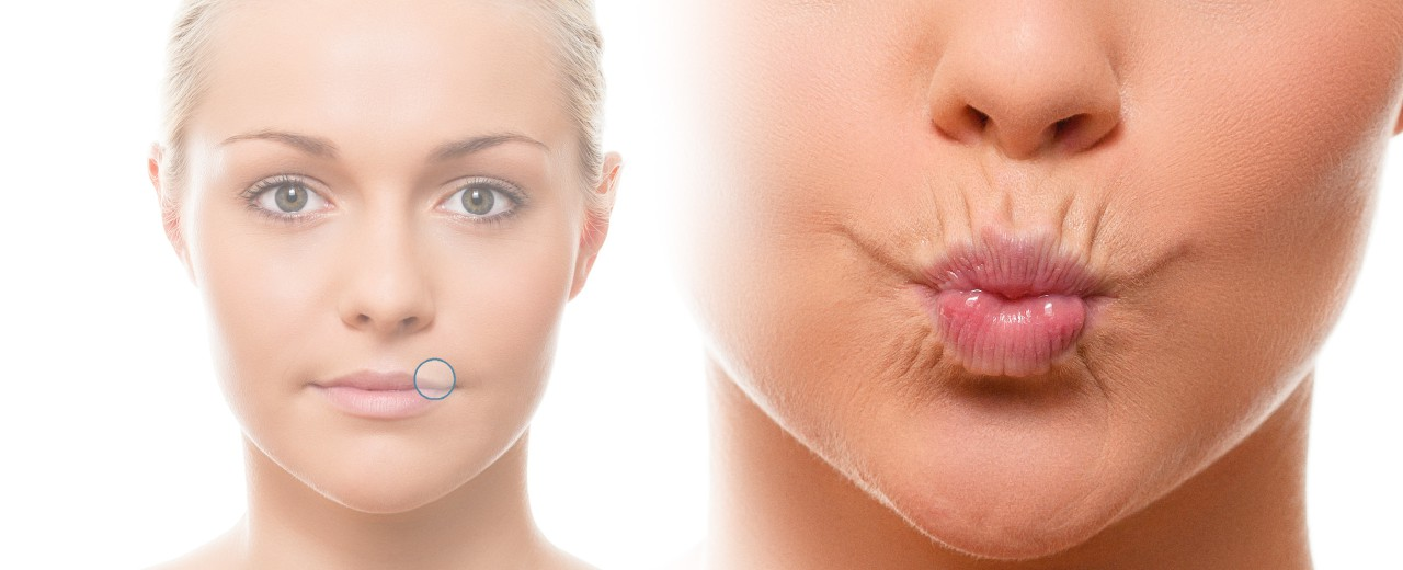 presentation-therapy-wrinkles-lips