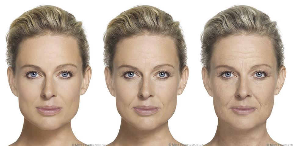 Hautalterung von 30 bis 50 Jahre © Merz Pharmaceuticals